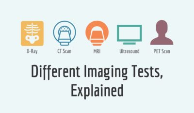 Illustration of Differences In X-ray Examination And CT Scan Functions?