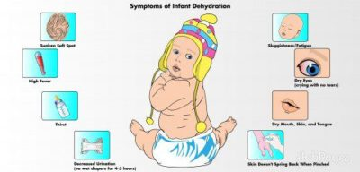 Illustration of How Do You Deal With Child Diarrhea And Dehydration?
