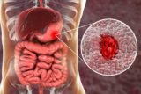 How To Deal With Stomach Ulcers And Stomach Acid?