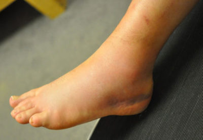 Illustration of Swollen Ankles After Falling, Do These Include The Characteristics Of Ewing Sarcoma Cancer?