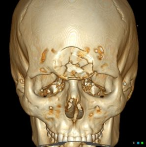 Illustration of Depressed Fracture Closed On The Skull?