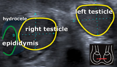 Illustration of Testicular Position Is Not Symmetrical After Orchitis?