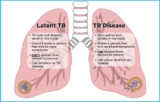 Did Not Feel The Symptoms Of TB But Was Diagnosed With TB?