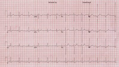 Illustration of Explanation Of ECG Examination Results In Men Aged 30 Years?