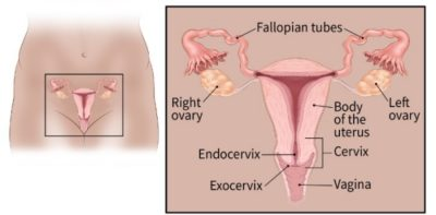 Illustration of The Possibility Of Ovarian Cancer In Men Who Have A Family History Of Ovarian Cancer?