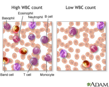 Illustration of Causes Of High Levels Of Leukocytes In The Blood?