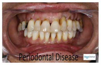 Illustration of Chances For Recovery Of Gum Conditions Are Decreasing?