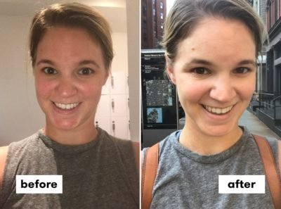 Illustration of Causes Of Bumps On The Face After Exercise?