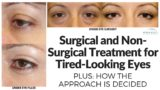 Handling Of Tired Eyes Without Surgery?