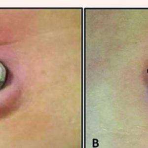 Illustration of Can Umbilical Granuloma Be Treated In Adults With Medication?