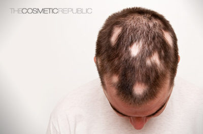 Illustration of How To Deal With Bald Circles On The Head?
