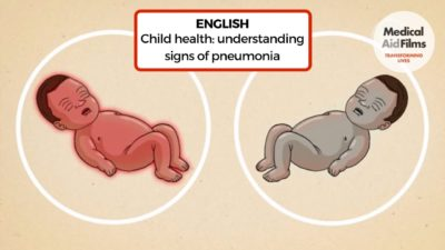 Illustration of How To Recognize The Symptoms Of Pneumonia In Infants?