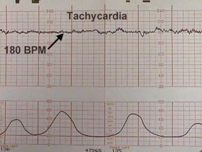 Illustration of Fetal Heart Rate That Has Not Been Detected?