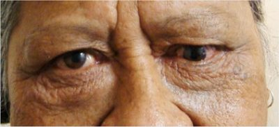 Illustration of How To Deal With Stiff Eyes In Patients With Minus Eyes?