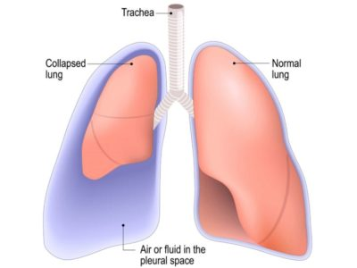 Illustration of How To Prevent Pneumothorax From Being Repeated?