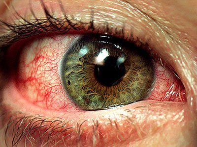 Illustration of Eye Redness After Alcohol Consumption?