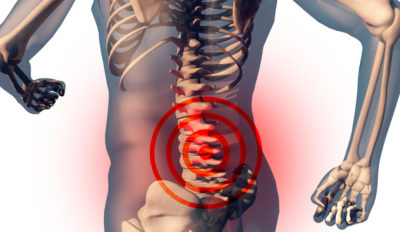 Illustration of Causes Of Back Neck Pain To The Waist?