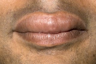 Illustration of Causes Swelling Of The Lips And Palms?