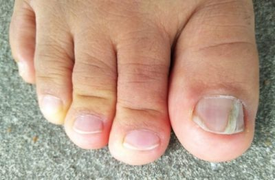 Illustration of The Cause Of The Nail To Harden And Not Grow Like Other Nails?