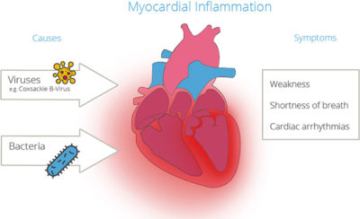 Illustration of Duration Of Healing For Heart Muscle Disorders?