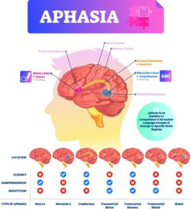Illustration of Experience Aphasia In Stroke Patients?