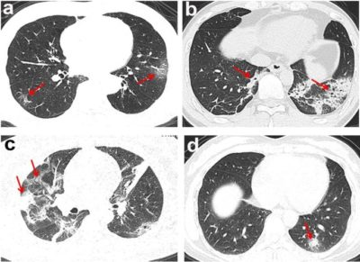 Illustration of An Explanation Of The Results Of CT SCAN And Declared Tumors?