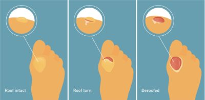 Illustration of How To Cure Blisters?
