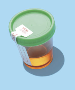 Illustration of Causes Of Reddish Urine Color Such As Menstruation?