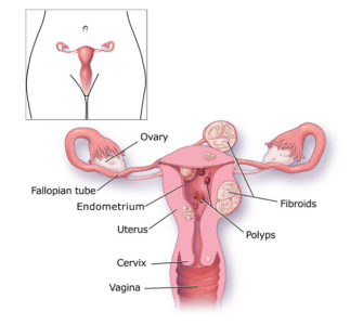 Illustration of The Cause Of Prolonged Menstruation And Blood Clot?