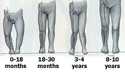 Illustration of O-shaped Legs In Children Aged 18 Months?