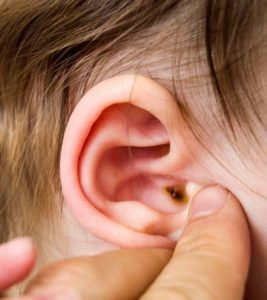 Illustration of Earwax That Accumulates And Hardens In The Ear Canal?