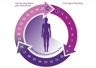 Illustration of The Right Time For A Pap Smear And The Time Limit For This Test?