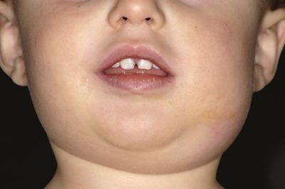 Illustration of What Are The Side Effects After Mumps Surgery?