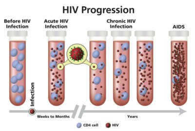 Illustration of How Long Has HIV Turned Into Aids?
