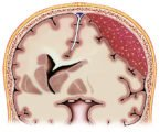 What Are The Long-term Effects Of Head Surgery On Bleeding Out Of The Brain?