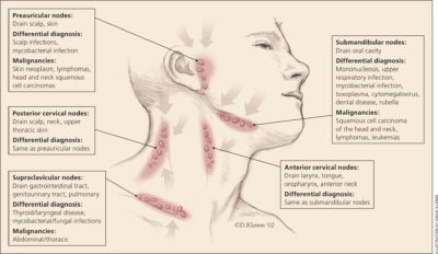 Illustration of What Are The Causes Of Bilateral Submandibular Lymphoma?