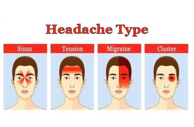 Illustration of Massaging The Forehead Until Red When A Headache?