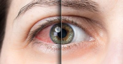 Illustration of The Cause Of Sensitive Eyes Seeing Light?