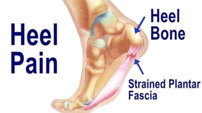 Illustration of Causes Of Pain In The Heel Of The Foot?