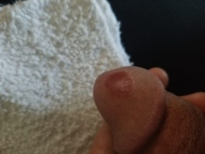 Illustration of Reddish Sores Appear On The Head Of The Penis?