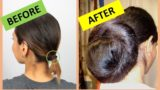 Overcoming Hair Loss Until Naturally Bald After Straightening Hair?
