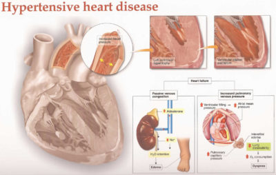 Illustration of Differences In Hypertensive Heart Disease And Hypertensive Heart Failure?