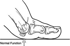 Illustration of The Big Toe Is Difficult To Move After A Hard Impact?
