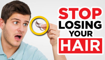 Illustration of The Cause Of Hair Loss Easily In Men?
