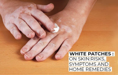 Illustration of Overcoming Itchy Skin And White Patches Arise After Using Beauty Products?