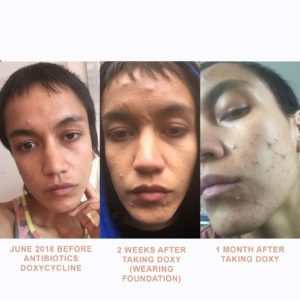 Illustration of Overcoming Acne On Facial Skin After Moving House?