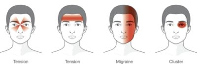 Illustration of A Headache Accompanied By Pain Around The Nose?