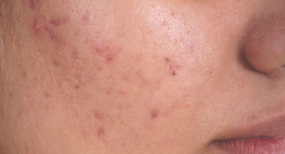 Illustration of Lumps Appear On The Face After Recovering From Acne?