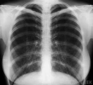 Illustration of X-ray Examination Results, Is Positive For TB?