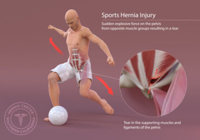 Illustration of Activities / Sports Recommended After Hernia Surgery?